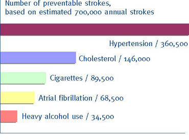 Chart of causes of stroke