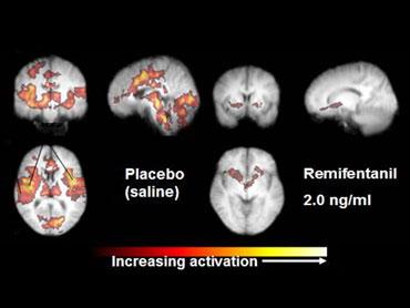 multiple-scan of brain