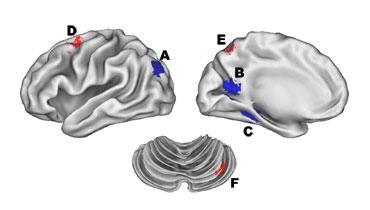 3 views of a brain