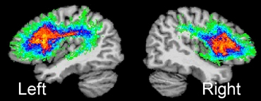 double hemisphere view of brain