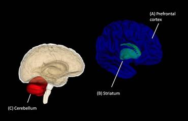 cartoon identifying brain areas