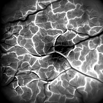Scan of retina