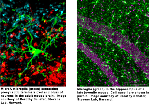 slide stains of microglia