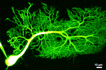 scope image of illuminated neuron
