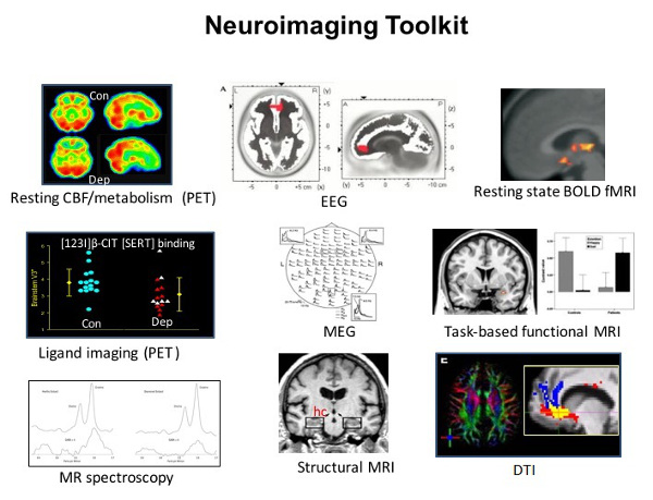 Neuroimaging Advances for Depression (Figure1)