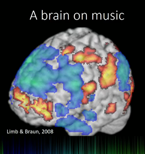 cartoon of a brain on music