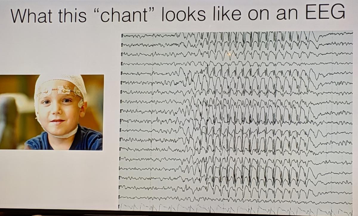 Epilepsy_EEG