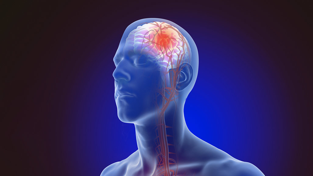 stroke animation image