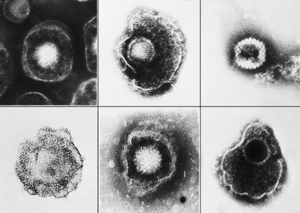 6 slides of viruses
